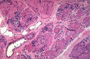 El músculo de los enfermos de Duchenne muestra fibras atrofiadas o hipertrofiadas y células inflamatorias.