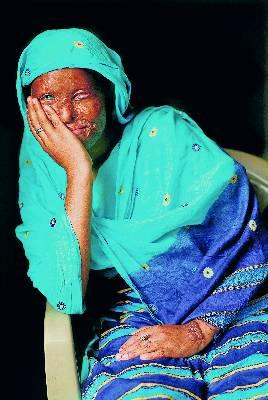 Las mujeres a las que desfiguran la cara con ácido son repudiadas por su familia.
