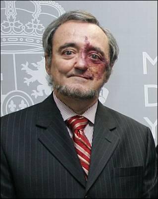 http://imagenes.publico.es/resources/archivos/2009/9/29/1254250414239Barbaciddn.jpg