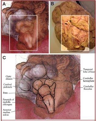 http://imagenes.publico.es/resources/archivos/2010/5/28/1275070205347madn.jpg