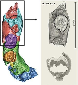 La radiografía de 'Jimena'.