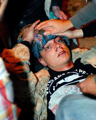 Scott Olsen, herido el martes en Oakland. -