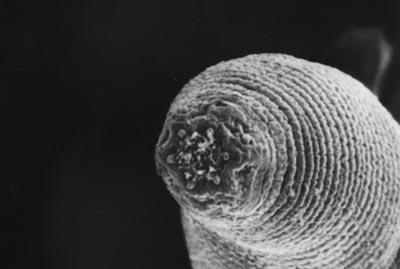 La cabeza del gusano H mephisto'. Gaetan Borgonie