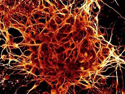 Neuronas en cultivo