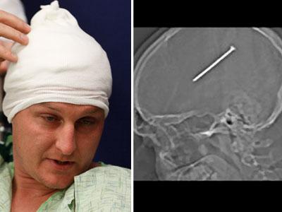 Dante Autullo tras la operación. La radiografía con el clavo en el cerebro.