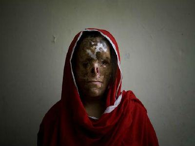 Violencias contra mujeres. Tipos y dinámicas sociales. Machismo y agresiones. Legislación de género. - Página 2 1351886253375pakistan%20detalledn