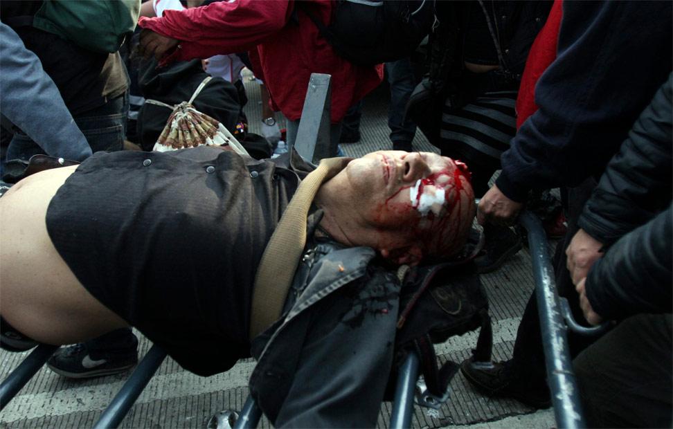 Uno de los heridos durante los enfrentamientos producidos en la protesta contra Peña Nieto.