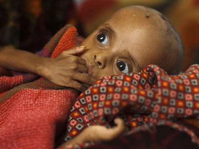 Un niño sufre desnutrición en Chad.