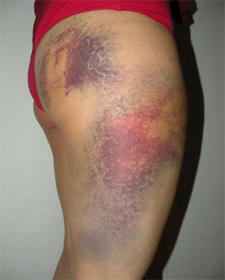 Lesión de una joven de 25 años en las cargas de la plaza de Catalunya.