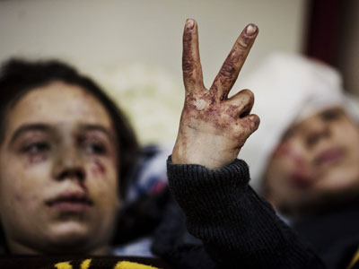 Niños heridos hacen el signo de la victoria tras los bombardeos del Ejército sobre Idlib.
