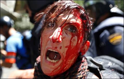 Una de las manifestantes heridas es retenida por la policía - AFP