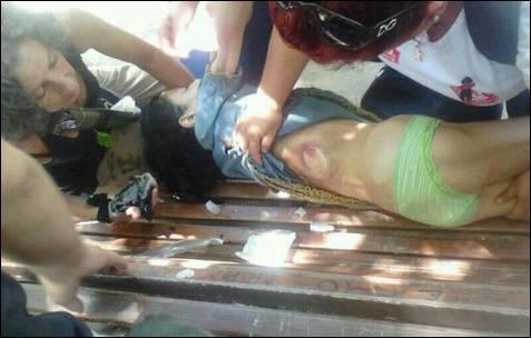 Una niña herida por una pelota de goma es auxiliada por manifestantes.