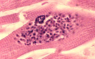 Algunos parásitos podrían estar vinculados con la inflamación del cerebro.