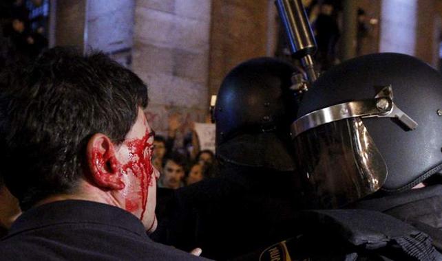 Uno de los heridos en la carga policial ocurrida el 25-S en la Plaza de Neptuno.