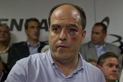 Julio Borges, uno de los diputados heridos.
