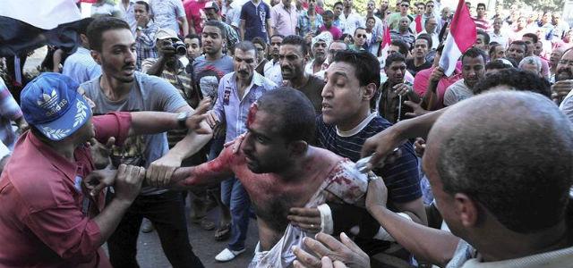 Un hombre egipcio ensangrentado tras los enfrentamientos entre los grupos de apoyo al presidente de Egipto, Mohamed Mursi y sus detractores, hoy, en Alejandría.EFE/Str