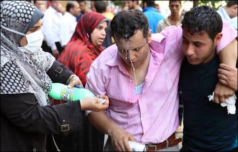 Los partidarios del depuesto presidente egipcio, Mohamed Mursi ayudan a un manifestante afectados por el gas lacrimógeno durante los enfrentamientos fuera de Al-Fath Mezquita en la plaza de Ramsés.