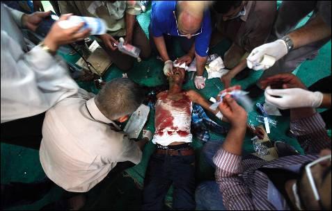 Un partidario del derrocado presidente egipcio Mohamed Mursi es tratado de sus heridas dentro de una mezquita en El Cairo.