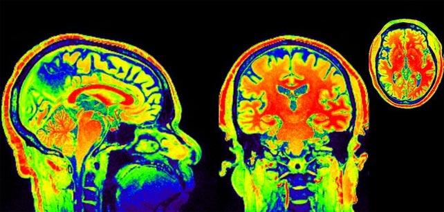 La depresión se estudia con técnicas de neuroimagen. Klaus Ebmeier / Universidad de Oxford