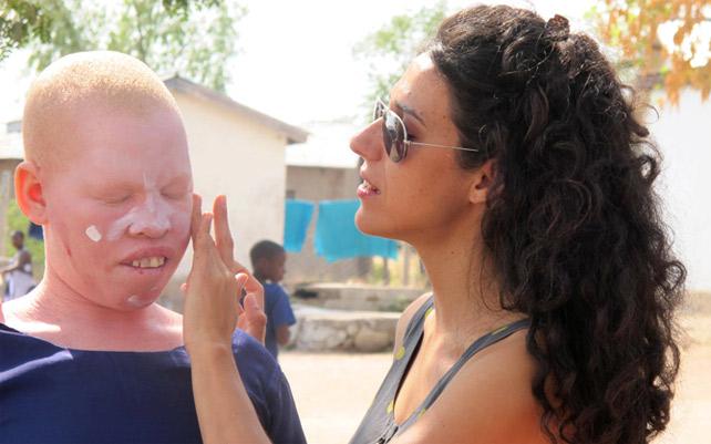 Mafalda Soto con una mujer albina. CUPA