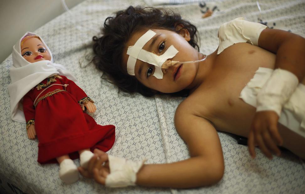 Una niña palestina de cuatro años de edad, descansa en el hospital tras ser herida en un ataque aéreo israelí que mató a su madre y dos de sus hermanos,en Gaza.